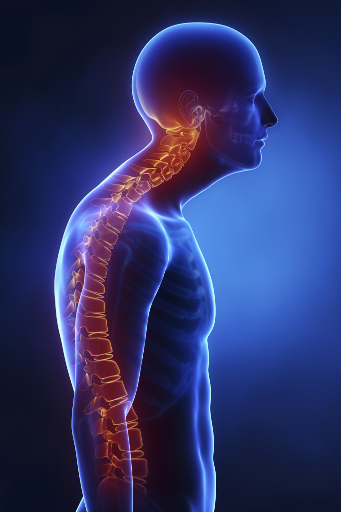 Scoliosis | Comprehensive Pain Management Center