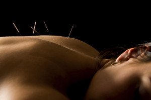 Acupuncture | ComprehensivePainManagementCenter.com