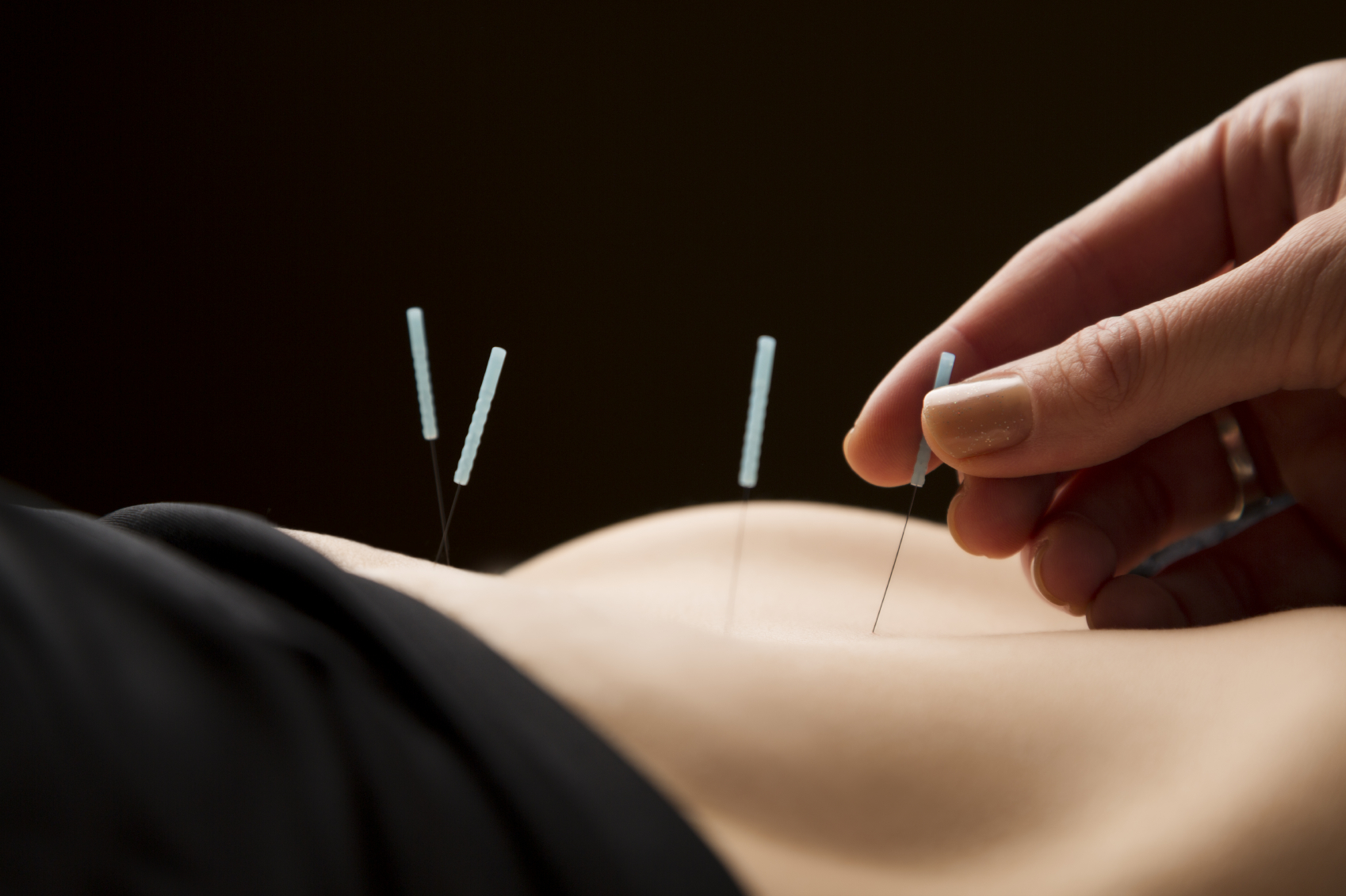 Acupuncture Research Essay