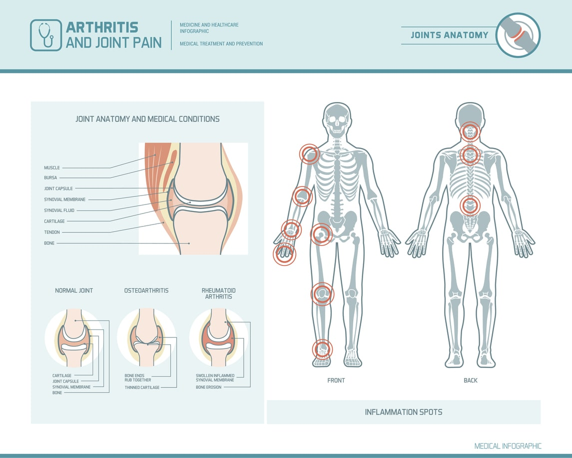 Arthritis Awareness Month Different Types Of Arthritis To Know Cpmc